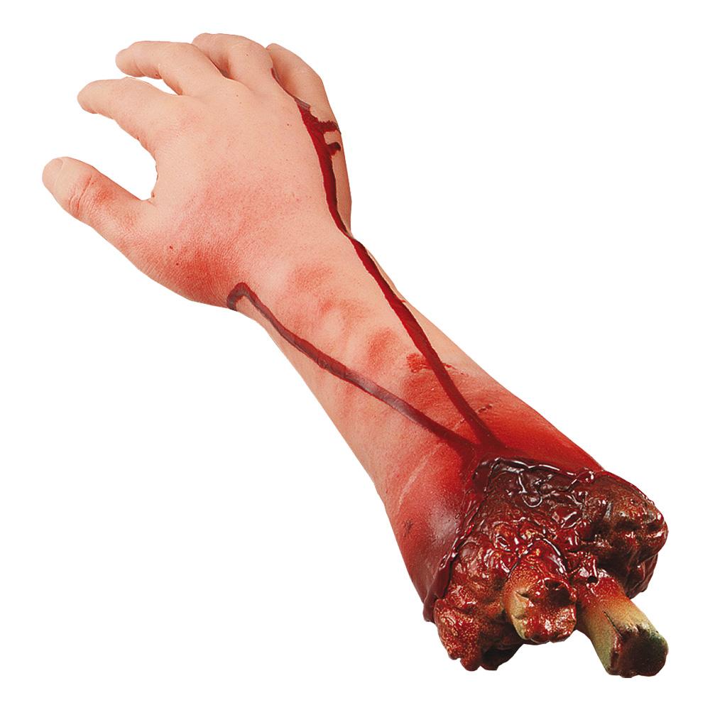 Avhuggen Arm